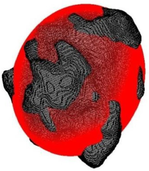 A tumor mass (gray) and its optimally fitted ellipsoid (red).