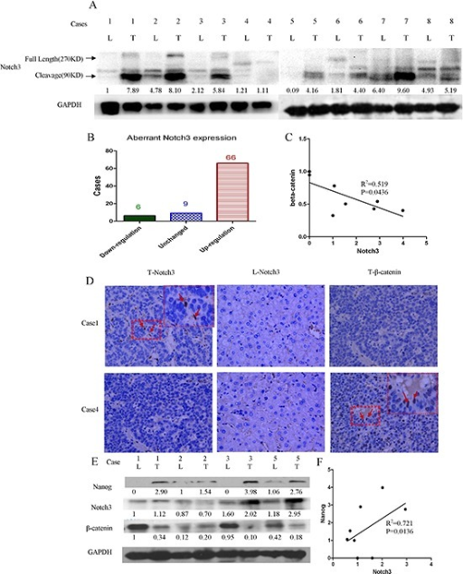 Notch3 signaling activation is negatively associated with β-catenin in HCC tissuesProtein levels were detected by western blot analysis. Notch3 proteins were obviously abundant in most of the tumor tissues (A and B); Notch3 expression is negatively correlated with β-catenin(C, R2 = 0.519, p < 0.05) and positively correlated with Nanog expression (E, R2 = 0.721, p < 0.05); The Notch3 and β-catenin proteins were detected by immunohistochemistry (D) and western blotting (E, L = liver, T = tumor); The correlation between the Notch3 protein level and the Nanog protein level were performed by Pearson correlation analysis (F, R2 = 0.721, p < 0.0136)