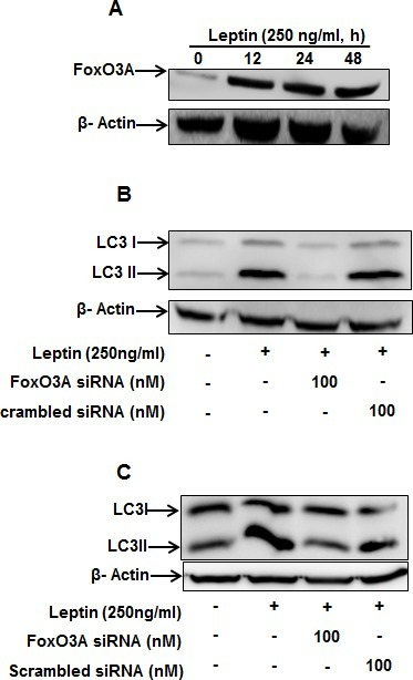 Role of FoxO3A signaling in activation of autophagic process by leptin(A) HepG2 cells were incubated with leptin for the indicated time points. FoxO3A protein expression levels were determined by Western blot analysis as described previously. (B) and (C) HepG2 (B) and MCF-7 (C) cells were transfected with FoxO3A siRNA for 48 h, followed by incubation with indicated concentration of leptin for 48 h. LC3 II protein expression levels were determined by Western blot analysis.