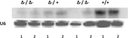 Northern Blot for expression of miR29a in the miR29ab1 hetero and homozygous mice (1 –spleen; 2 –liver).