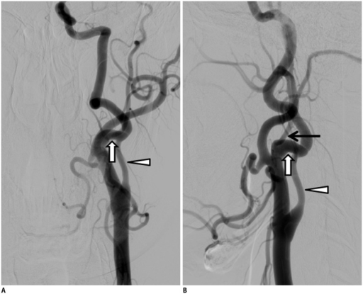 44-year-old man with anomalous ECA-ICA anastomosis and hypoplastic proximal ICA.A, B. Frontal (A) and lateral (B) angiographic images showing anomalous ECA-ICA anastomosis at C2-3 spinal level and relatively hypoplastic proximal ICA at expected site of ICA origin. Anomalous anastomosis (white arrow), hypoplastic proximal ICA (arrowhead), and occipital artery (black arrow). ECA = external carotid artery, ICA = internal carotid artery