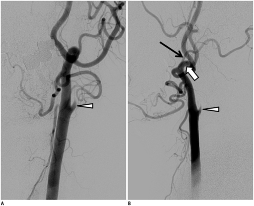 60-year-old man with anomalous ECA-ICA anastomosis and proximal ICA remnant.A, B. Oblique (A) and lateral (B) angiographic images showing origins of ECA and ICA from common trunk, with carotid budding at carotid bifurcation level as probable remnant of proximal ICA. Anomalous anastomosis (white arrow), arterial stump (arrowhead), and occipital artery (black arrow). ECA = external carotid artery, ICA = internal carotid artery