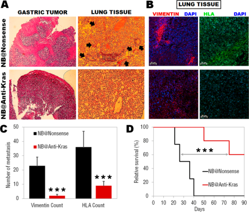 (A) Histological analysis of gastric tumor and lung tissue indicating a reduced vascularization in the primary tumor and a decrease in tumoral clones in lung tissue treated with anti-Kras nanobeacons only. Nonsense nanobeacons group present inflammatory cells accumulation at bronchoalveolar junction and thickened local alveolar walls and high prevalence of tumoral clones (arrows). (B) Representative confocal microscopy images of lung tissue immunostaining, confirming the persistence of gastric cancer metastasis in the lungs. Blue: DAPI nuclear stain; red: Alexa-Fluor®594-labeled anti-human vimentin; green: FITC-labeled anti-human HLA. Scale bars, 20 μm. (C) anti-Kras nanobeacons treatment significantly reduced the number of spontaneous lung metastasis in gastric cancer model (***P < 0.005, n = 6 mice). (D) Kaplan-Meier survival curves for mice treated with nonsense (black) and anti-Kras (red) nanobeacons using Log-Rank test. Data points represent group mean ± SD (n = 6, ***P < 0.005).