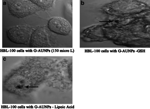 Confocal microscopic image of control HBL-100 cells (a); HBL-100 cells treated with 500 μM of GSH-GAuNPs (b) arrows indicate agglomerated GAuNPs; c HBL-100 cells treated with 500 μM of LA-GAuNPs for 14 h. Arrows indicate agglomerated AuNPs in a membrane-bound vesicle (probably perinuclear lysosome)
