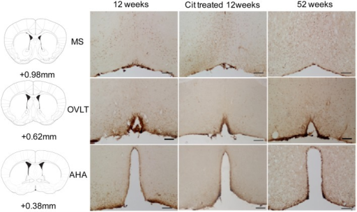 Representative images of SIRT4 immunoreactivity in the medial septum (MS), organum vasculosum of the lamina terminalis (OVLT) and anterior hypothalamic area (AHA) from control, citalopram (CIT) treated and mid-aged samples (52 weeks). Scale bar = 100 μm.