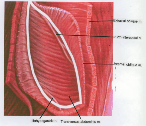external oblique muscle; twelfth intercostal nerve; internal oblique muscle; iliohypogastric nerve; transversus abdominis muscle
