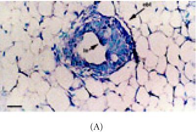 α-catenin, β-catenin, and E-cadherin expression in 6 week-old mammary glands. (A) Mammary section hybridized withdigoxigenin-UTP-labeled probe for α-catenin mRNA. Note in end bud tip (ebt), fibroblasts (f), and luminal epithelium (le) express α-catenin. (B–C) Association of α-catenin protein expression and transitional unit (boxed areas) in the TEB. Note in (C), α-catenin expressing cell and cytoneme. (D) 6 week-old mammary section hybridized with digoxigenin-UTP-labeled probe for β-catenin mRNA. (E) β-catenin immunostaining outlines the luminal epithelial cell layer of the 6 week-old TEB. (F) 6 week-old mammary section hybridized with digoxigenin-UTP-labeled probe for E-cadherin mRNA. (G–H) E-cadherin immunostaining in 6 week-old glands. Note E-cadherin expression outlines the luminal epithelial cell layer of the 6 week-old TEB, but negative staining occurs in the transitional unit (boxed area). All sections were collected according to materials and methods. Insets in (A–B, D–G) control probed tissue, respectively. Scale bars (A–B) 50 μm, (C) 24 μm, (D–E) 50 μm, (F–G) 50 μm, and (H) 24 μm.
