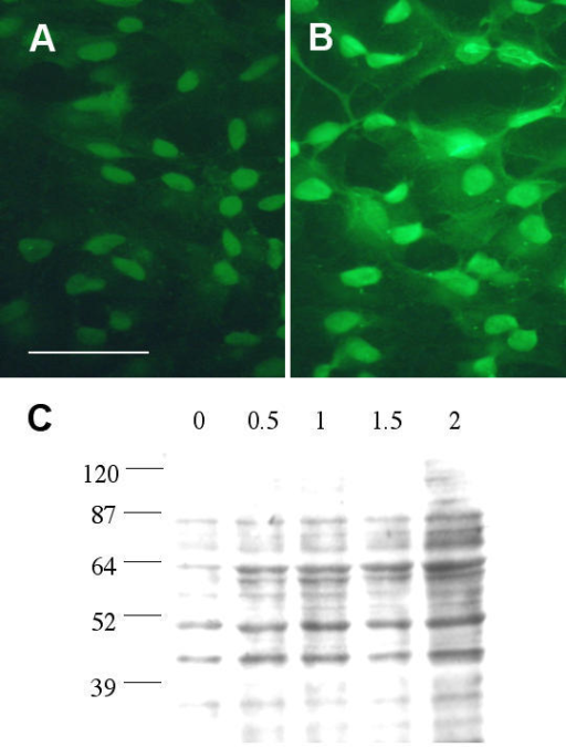 H2O2 induced lipid peroxidation in RPE. ARPE-19 cells were treated with 1.5 mM H2O2 for 4 hours then processed for immunofluorescent staining using antibodies against 4-HNE. Fig. 3A: untreated cells. Scale bar: 50 μm. Fig. 3B: H2O2 treated cells. Note the overall enhanced staining in nucleus and cytoplasm. Fig. 3C: ARPE-19 cells were treated with various concentrations (0.5, 1, 1.5, 2 mM) of H2O2 for 24 hours then processed for Western blot analysis using anti-4-HNE antibodies. These polyclonal antibodies recognize cysteine-, histidine- and lysine-4-HNE Michael adducts. This is a representative result from 6 similar experiments.