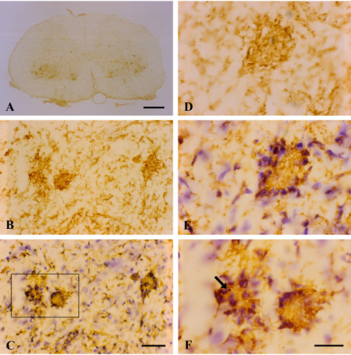 OX-42 immunohistochemistry during symptomatic phase of disease. A, low power view reveals intensified immunoreactivity in spinal cord ventral horns; multiple large, rounded spots are visible. B, higher power view of large immunoreactive spots is suggestive of phagocytic clusters. C, same field as in B; counterstaining with cresyl violet facilitates identification of large immunoreactive spots as multinucleated giant cells. D, E, the same microscopic field prior to and after cresyl violet counterstaining reveals a well-formed multinucleated giant cell of the Langhans type. F, enlargement of framed area in C shows apoptotic microglial nucleus (arrow) within a giant cell. Scale bars: 500 μm (A), 40 μm (B, C), 20 μm (D-F).