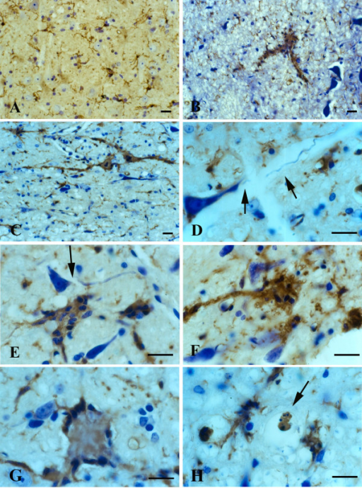 Lectin staining of microglia in the brainstem (level of cranial nerve VII) in wildtype animals (A) and in late symptomatic/end stage animals (B-H). Cresyl violet counterstain. A, microglia show normal ramified morphology. B, a large lectin-positive aggregate of fused microglia is evident in severely vacuolated brainstem tissue. Note enlarged perineuronal spaces to the right. C, string-like microglial fusions extend over long distances. D, breakage of neuronal process, probably a dendrite, from cell body within markedly vacuolated space (arrows). E, two multinucleated microglial giant cells are seen below a neuron with broken off process (arrow). F, large multinucleated giant cell displaying vacuolization is present amidst numerous microglial cytoplasmic fragments. G, multinucleated giant cell of the Langhans type displaying characteristic peripheral arrangement of nuclei. H, rounded lectin-positive microglial cell (arrow) within vacuolated space displays nuclear fragmentation indicative of apoptosis. Scale bars: 20 μm (A-H).