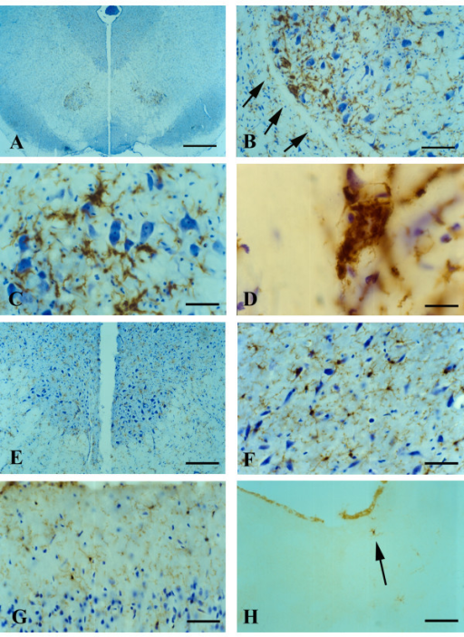 Visualization of microglia in midbrain with GSA-I-B4 lectin (A-F) and in motor cortex with OX-42 (G) and OX-6 (H) during symptomatic disease. A, low power view of midbrain reveals enhanced lectin staining in the red nucleus. B, higher magnification shows that enhanced lectin reactivity is confined strictly to red nucleus region (arrows indicate perimeter of red nucleus). C, microglial fusions are interspersed with rubrospinal neurons that appear undamaged. D, lectin-positive microglial fusion (giant cell) within red nucleus. E, oculomotor nucleus reveals normal-appearing motor neurons and lack of microgliosis. F, substantia nigra (pars compacta) shows presence of normal, ramified microglial cells. G, motor cortex shows normal, ramified microglia. H, single, ramified microglial cell positive with OX-6 (arrow) near lateral ventricle. Scale bars: 400 μm (A); 200 μm (E); 100 μm (B,H); 50 μm (C,F,G); 20 μm (D).