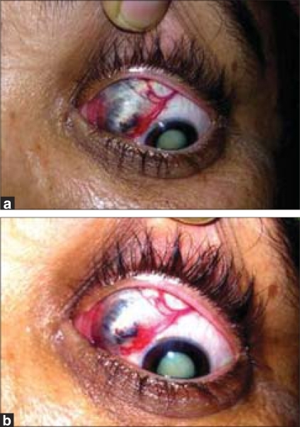 Clinical appearance of the right eye