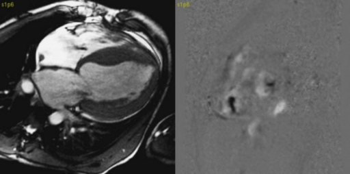 On the left site SSFP image in 4 chamber orientation – signal lost due to tricuspid and mitral valves insufficiency. On the right site velocity encoded phase contrast image in short axis orientation at the level of mitral and tricuspid valves – black spots indicate valves insufficiency.