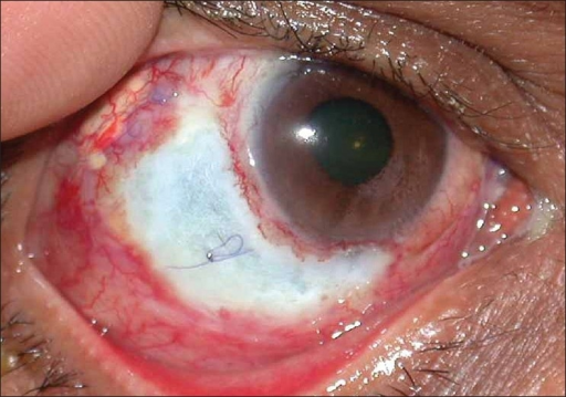 Preoperative picture showing scleral ulceration with exposed sclerotomy