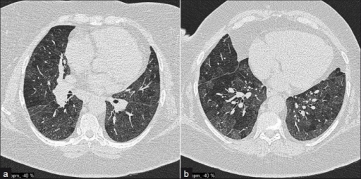 A 57-year-old male with obliterative bronchiolitis secondary to RA; (a) and (b) HRCT axial sections demonstrate marked mosaic pattern attenuation.