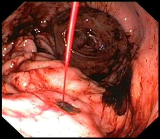 Forrest Ia Ulcer Bleeding In A Small Gastric Ulcer Open I