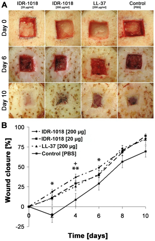 Efficacy in porcine wound healing of IDR-1018 compared to LL-37.(A) Efficacy in an infected porcine model of wound healing by IDR-1018. Digital photographic overview of porcine wounds treated with IDR-1018 (20 or 200 µg/ml every 48 hours) compared to LL-37 (200 µg/ml, positive control) and PBS (carrier control). (B) Quantification of re-epithelialization in wounds treated with IDR-1018. Re- epithelialization was assessed with IDR-1018 (20 and 200 µg/ml), LL-37 (200 µg/ml) or PBS. For day 0 to day 6 each value was calculated as mean out of six wounds while values of day 8 and 10 were calculated out of three different wounds. The bars represent standard error of the mean wound closure (*,+  = p<0.05; **,++  = p<0.01 (*IDR-1018 200 µg/ml; +IDR-1018 20 µg/ml) compared to vehicle control).