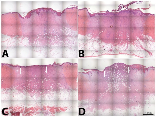 IDR-1018 promoted early keratinocyte proliferation in porcine wounds.Representative examples of paraffin embedded, hematoxylin-eosin-stained sections of porcine wounds at day 10 of the study. Sections show enhanced re-epithelialization in the IDR-1018–treated wounds (A: 200 µg/ml and B: 20 µg/ml) compared to LL-37 (200 µg/ml) (C) and PBS (D) treated wounds at wound edge (white arrow).