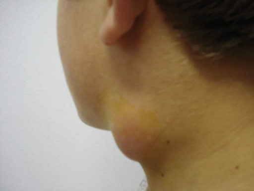 Lymph node enlargement in a case of oropharyngeal tularemia.