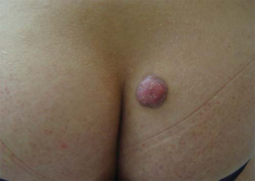 Erythematous nodule on the right buttock