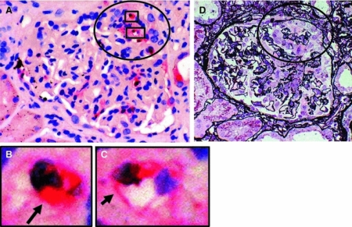 MPO staining in the glomeruli of patients with MPO-ANCA-associated glomerulonephritis. a MPO-positive cells and MPO are shown in the glomerulus and along the glomerular capillary wall, respectively. b MPO in the cytoplasm of a polymorphonuclear leukocyte (arrow) (MPO staining). c MPO along the glomerular capillary wall (arrow) (MPO staining). d Periodic acid silver methenamine and hematoxylin and eoxin staining on the serial sections in active segmental necrotizing glomerular changes