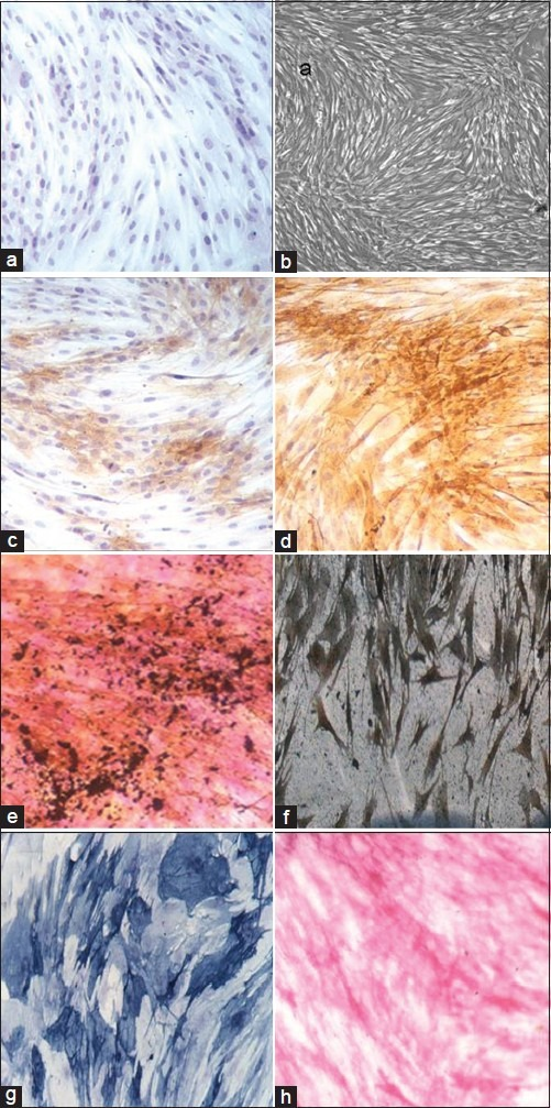 (a) Negative staining for osteocalcin in undifferentiated adipose tissue derived mesenchymal stromal cells (ATSC) (IHC stain, ×200), (b) Cell confluence of human umbilical vein endothelial cells (HUVEC) monitored by phase-contrast microscopy (×100). There was a positive expression of stem cell specific marker SH2 (c) (IHC stain, ×100) and SH3 (d) (IHC stain, ×100) in these undifferentiated ATSC. Osteogenic differentiation showed a positive reaction to Von Kossa (e) (Von Kossa stain, ×100), (f) silver staining (silver nitrate, ×100), (g) osteocalcin protein (IHC stain, ×100) and a positive reaction to enzyme alkaline phosphatase (h) (colorimetric enzyme assay, ×100)