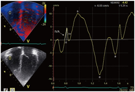 Tissue Doppler imaging with the curser at the right ventricular free wall-tricuspid annular junction. a: late diastolic myocardial velocity, e: early diastolic myocardial velocity, IVA: isovolumic acceleration, s: systolic myocardial velocity, Δt: time difference, Δv: velocity change.