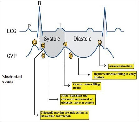 Cvp Waveforms With Corresponding Cardiac Events And Ecg Open I