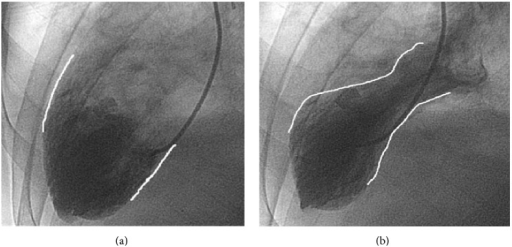 Ventriculograms showing the heart at end diastolic volume (a) and at end systolic volume (b), revealing apical ballooning seen in Takotsubo's. Outlining used for enhanced visualization of the ventricle wall for comparison.