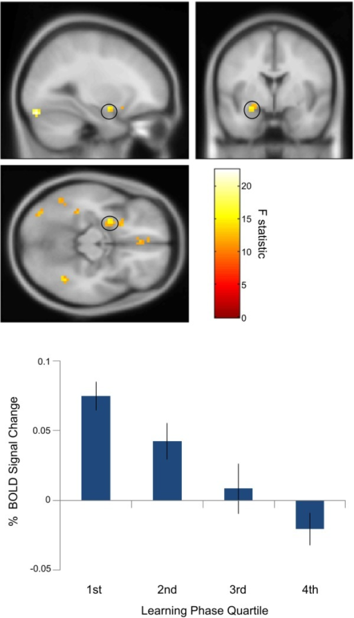 Temporal attenuation of amygdala object novelty effect. Above: Left amygdala activity (peak: x = −27; y = −1; z = −14; Z-score = 3.65) corresponding object novelty (novel versus familiar objects) showed a linear decrease over the course of the learning phase as relative novelty decreased. Below: Percent signal change extracted from a 10 mm sphere around the peak left amygdala voxel averaged across 18 participants for novel versus familiar objects for the first to fourth quartile of the learning phase. Activations are shown at the uncorrected threshold of P < 0.001 and overlaid on the Montreal Neurological Institute 152 T1 image for display purposes. [Color figure can be viewed in the online issue, which is available at wileyonlinelibrary.com.]