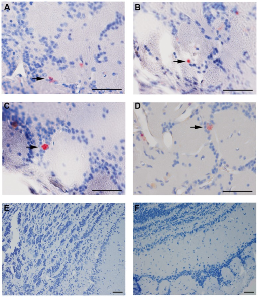 Chlamydia pneumoniae specific immunoreactivity in olfactory bulbs. Cpn (AR-39) antigens were detected in olfactory bulb tissues at 1 month pi following intranasal inoculation (arrows). (A,B) are from 1 infected mouse and (C,D) from a separate mouse infected with Cpn and labeled with a cocktail of anti-Cpn antibodies (RDI-PROAC1p, M6600, 10C-27). (E,F) are representative images from mock-infected mice comparably immunolabeled. Mag bars (A–F) = 50 μm.