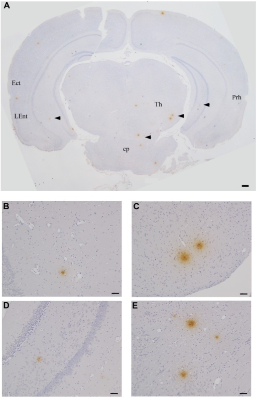 Beta amyloid Aβ 1–42 deposits in the CNS at 2 months pi following intranasal infection with Chlamydia pneumoniae AR-39. Brains were examined by light microscopy for the presence of Aβ 1–42 using a specific anti-Aβ 1–42 antibody. (A–E) Representative images of Aβ 1–42-specific labeling (arrowheads) are shown within different regions of this brain section. Ect (entorhinal cortex), L Ent (lateral entorhinal cortex), Th (thalamus), Prh (perirhinal cortex), Cp (cerebral peduncle). Mag bars (A) = 100μm; (B–E) = 20 μm.