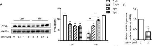 TSH decreased ATGL expression in mature differentiated cells.(A) On D12, the cells were treated with 0.1 μM bTSH, 1 μM bTSH or 2 μM bTSH for 24 h or 48 h in serum-starved DMEM. Proteins were separated by SDS-PAGE and immunoblotted for ATGL and GAPDH. Values are quantified by densitometry and normalized with GAPDH. Representative Western blot results are shown. (B) Total RNA was extracted from differentiated cells treated with 2 μM bTSH for 48 h in serum-free DMEM. ATGL mRNA levels were determined by real-time PCR and normalized with β-actin. Values are reported as the fold change relative to the control group. The data are from 3 independent experiments and are presented as the mean ± SD. ** p < 0.01 versus the control group. Original magnification: 400×.
