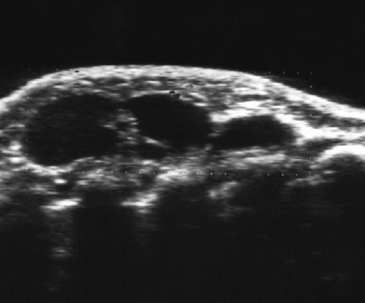 Chest ultrasonography showing three tumors with an internal hypoechoic pattern.