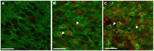 Neurons in OHCs were particularly vulnerable to blast injury. Representative confocal images of CA1 region of sham-injured (A), low (B), and high blast-exposed OHCs (C) at 72 h following injury. Sections were co-stained against neuronal marker Tuj1 (green) and PI (red). Confocal images with the overlay of PI and Tuj1 staining demonstrated good viability of neurons in the sham OHCs (A), and significant number of killed neurons in blast-exposed OHCs (B,C) that co-expressed Tuj-1 and PI (arrows). Scale bars 25 μm.