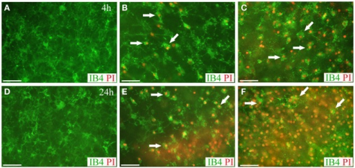 Live microglia imaging in OHCs following blast exposure. Microglial cells in OHCs were labeled with IB4 (green) and images of CA1 region were captured at 4 h (A–C) and 24 h (D–F) following sham (A,D) or blast injury (B,C,E,F). OHCs maintained low level of microglial activation and PI staining (red) at 4 h (A) and 24 h (D) following sham injury. Dead microglial cells that were co-labeled with IB4 and PI (arrows) were observed in low- (B) and high- (C) blast group at 4 h post-injury. Even more prominent microglial death was detected in low- (E) and high- (F) blasted OHCs at 24 h post-injury. Activation-induced change in microglia morphology from ramified to rounded was also observed in blasted OHCs (B,C,E,F). Scale bars 50 μm.