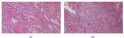 (a) Colon hepatic flexure tumor biopsy. Moderately differentiated adenocarcinoma of the colon hepatic flexure (hematoxylin and eosin staining, ×100). (b) Ascending colon tumor biopsy. Undifferentiated carcinoma of the ascending colon (hematoxylin and eosin staining, ×100).