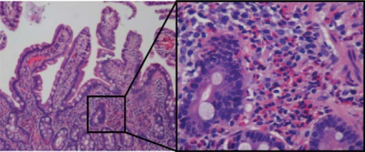 Photomicrograph of duodenal wall biopsy showing infiltration of eosinophils. Low- and high (inset)-power magnification of duodenal biopsy specimen obtained during acute episode of pancreatitis. Region shown by high-power magnification is boxed, and reveals numerous eosinophils (80 high powered field), consistent with the diagnosis of EG. No villous blunting was seen.