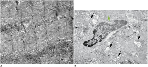 Electron transmission micrographs of myocardium.A. Abundant mitochondria packed around normal nuclei are shown in non-irradiated field (× 10000). B. Slightly dilated cristae in some mitochondria scattered around nucleus (black arrows), as well as enlarged nuclei (green arrows) were observed in irradiated myocardium (× 10000).