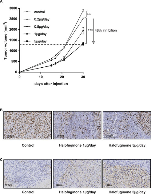 Halofuginone inhibits osteosarcoma primary tumor growthA. Mice were injected with 2.106 HOS cells in each group. One day after cell injection, mice were daily intraperitoneal injected with 0.2 μg/mouse (n = 4), 0.5 μg/mouse (n = 4), 1 μg/mouse (n = 10) or 5 μg/mouse (n = 10) halofuginone or with vehicle (control group, n = 10). The results are representative of 2 independent experiments. The mean tumor volumes were calculated from day 1 to day 30. (Mean ± SEM; ***p < 0.005). B. Tumor samples (tumor sizes around 500 mm3) were fixed, embedded in paraffin, sectioned and stained with Ki-67. Representative photomicrographs per group are shown. C. Tumor samples (tumor sizes around 500 mm3) were fixed, embedded in paraffin, sectioned and stained with Caspase-3. Representative photomicrographs per group are shown.
