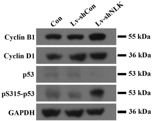 Western blot analysis of apoptosis-associated proteins. Western blot analysis revealed that knockdown of NLK resulted in upregulation of pro-apoptotic proteins in Lv-shNLK cells, suggesting that the apoptotic effect of NLK may be partly mediated by pro-apoptotic family member proteins.