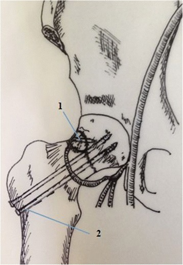 Diagrammatic representation of the operative technique.1.Magnesium screws and vascularised iliac grafting.2.Cannulated compression scrows