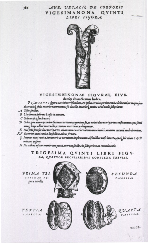 <p>The 30th plate in the 5th book of Vesalius 1555 edition of De humani corporis fabrica, in which he corrects the presentation of the placenta, from that of the 1543 edition.</p>