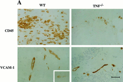 Characterization of the early CNS inflammatory infiltrate in  WT and TNF−/− mice. (A) Leukocyte inflammation (CD45+) and  VCAM-1 expression at day 15 (Fig. 1 A, horizontal bar). Tissue sections  were derived from brain stem and cerebellum and are representative of  tissues throughout the CNS of several WT and TNF −/− mice at this time  point. (Inset) VCAM-1 expression of unimmunized C57BL/6J-strain CNS.  Bar = 60 μm. (B) Total cell recoveries from the perfused CNS of normal  and immunized mice over the course of disease. Replicates concentrated  on the early disease phase when TNF−/− mice were not showing signs of  clinical disease. For simplicity, individual mice from days 13–15 are all  shown at the day 15 time point. Each data point represents a single  mouse. +, WT unimmunized. •, WT MOG immunized. ○, TNF−/−  MOG immunized. (C) T cell accumulation in the CNS of normal and  MOG-immunized WT and TNF−/− mice at day 15. Pooled cells obtained from two mice in each case were stained and analyzed by flow cytometry. Percentage of total cells in each preparation as defined by populations 1, 2, and 3 (see text) are shown in the inset. CD45− TCR− cells  are undefined but would represent nonhematopoietically derived cells including neurons, endothelial cells, astrocytes, and oligodendrocytes.