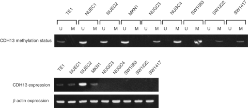 Representative MSP of CDH13 promoter in digestive tract cancer cell lines. The presence of a visible PCR product in lane U indicates the presence of unmethylated genes; the presence of PCR product in lane M indicates the presence of methylated genes. All colon cancer cell lines (SW1083, SW1222, and SW1417) and two gastric cancer cell lines (NUGC3 and NUGC4) that demonstrated only methylation of the CDH13 promoter lacked CDH13 gene expression, while CDH13 was expressed in other cell lines with unmethylation of the CDH13 promoter.