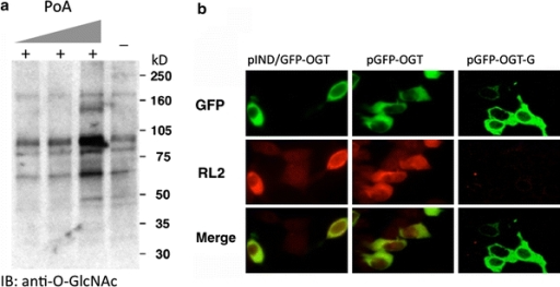 O-GlcNAcylation is consistent with GFP-fused OGT expression, but not with mutant, catalytically defective, OGT. a Western blot analysis reveals that induction of GFP-fused OGT expression with increasing concentrations of Ponasterone A (PoA) (0.5, 3, 15 µM, respectively) causes an increase in the levels of total O-GlcNAc modification. The level of O-GlcNAc modified proteins prior to induction is shown in the last lane (−). The anti-O-GlcNAc antibody, RL2, was used in the Western Blot analysis. b Immunofluorescent detection of GFP-fused OGT expression and its catalytic activity using RL2 staining. RL2 specifically recognizes O-GlcNAcylated proteins. pGFP–OGT-G is the c-terminal deleted, catalytically defective OGT under CMV-driven promoter