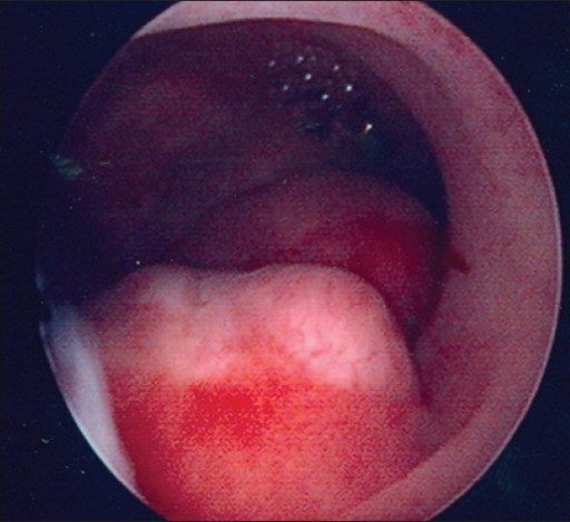 Multiple Endometrial Polyps Open-i