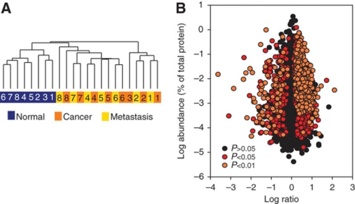 Quantitative comparison of proteins identified in colonic mucosa, cancer, and metastasis. (A) Unsupervised hierarchical clustering of intensities of 7576 proteins for patient matching primary adenocarcinomas and adjacent normal mucosa (8 pairs) and 7 nodal metastases. (B) Distribution of protein ratios versus protein abundance.