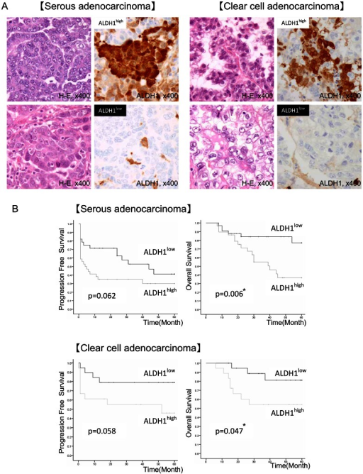 Correlation between ALDH1 immunoreactivity and patients' clinical outcome in ovarian serous and clear cell carcinoma.A H-E staining and ALDH1 immunohistochemical staining of primary ovarian serous adenocarcinoma (left) and primary ovarian clear cell adenocarcinoma (right) Upper left panel: H-E staining of ALDH1high specimen. Upper right panel: ALDH1 immunohistochemical staining of ALDH1high specimen. Lower left panel: H-E staining of ALDH1low specimen. Lower right panel: ALDH1 immunohistochemical staining of ALDH1low specimen. Magnification of images: ×400. B Log-rank test for ALDH1high/low groups of ovarian serous adenocarcinoma and clear cell adenocarcinoma patients. Serous adenocarcinoma: 62 cases/clear cell adenocarcinoma: 37 cases. Cases in the ALDH1high group are cases with positive ratio for ALDH1 of over 20% for serous adenocarcinoma cases and 15% for clear cell adenocarcinoma cases. Left: column: progression-free survival (PFS). Right column: overall survival (OS). *P values.
