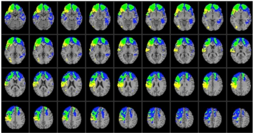 Lesion overlap map illustrating common and distinctive brain regions for Val/Val (blue) and Val/Met (yellow) genotype patients.Overlap between Val/Val and Val/Met genotype patients is illustrated in green. In each axial slice, the right hemisphere is on the reader's left.